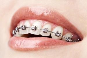 Estudiar el grado en odontología: Especialidad en Ortodoncia