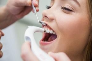 ¿Qué es un técnico superior en higiene bucodental?