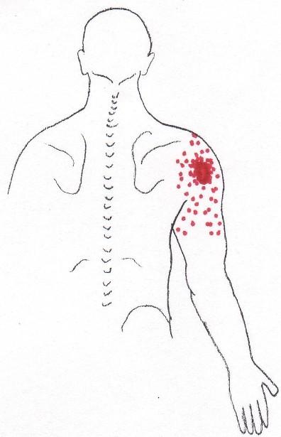 Nerve Pain: Nerve Pain Trigger Points