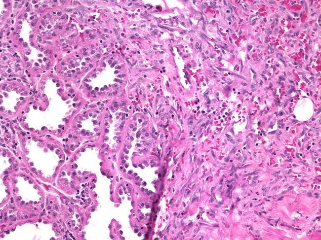 Pathology Outlines  Angiosarcoma