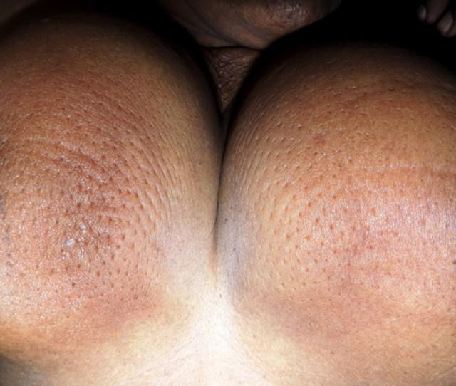 Breast_ca_bilateral4_resized Jpg