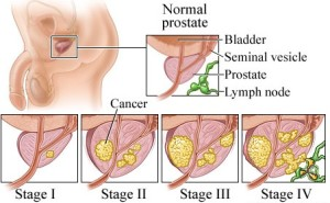 Find Prostate Cancer Treatment At Most Advanced Hospital In India