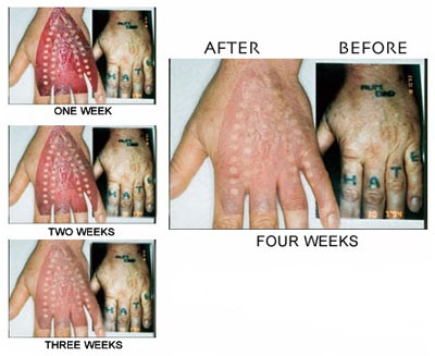 Laser Tattoo Removal Price In India