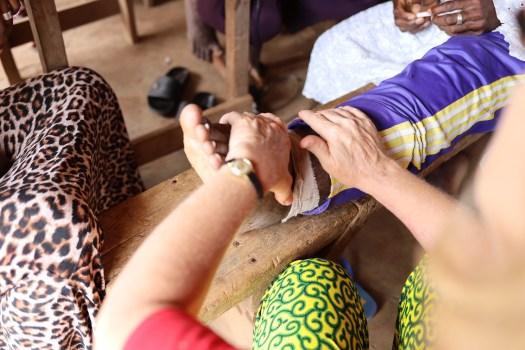 Behandlung eines Elefantiasis Patienten