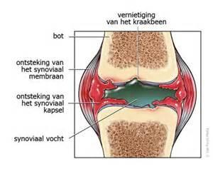 Laat artritis niet verergeren