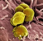 San Fran Reports Drug-Resistant Gonorrhea on the Rise Among Gay Men