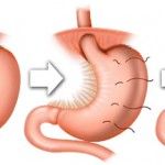 Gastric Plication Surgery