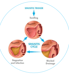 the cause of sinusitis can be narrowed down to a few different factors infections are the largest factor and can be caused by bacteria such as  [ 1152 x 1067 Pixel ]