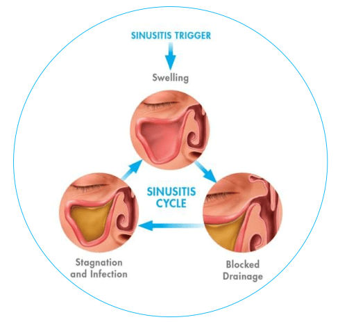 small resolution of the cause of sinusitis can be narrowed down to a few different factors infections are the largest factor and can be caused by bacteria such as