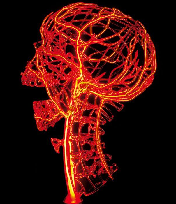 blood pressure | 2007 | h…35cm