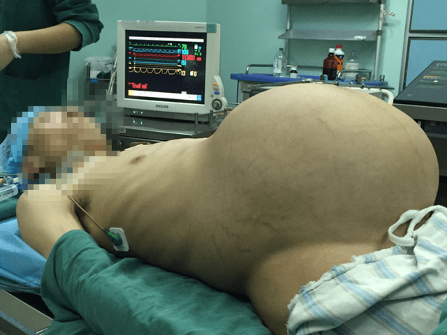 Pregnant man china tumor