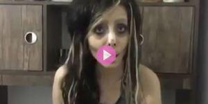 Weird News teen surgery