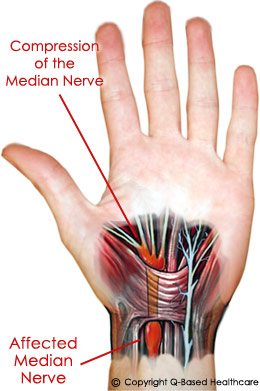 hand nerves diagram 24 volt wiring of the carpal tunnel great installation call center health syndrome live2sell group rh welive2care com self administered procedure