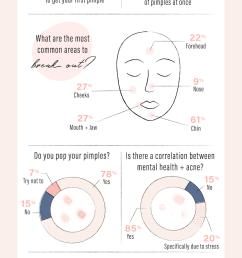 acne infographic [ 870 x 2103 Pixel ]