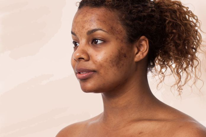 Image result for black girl with acne