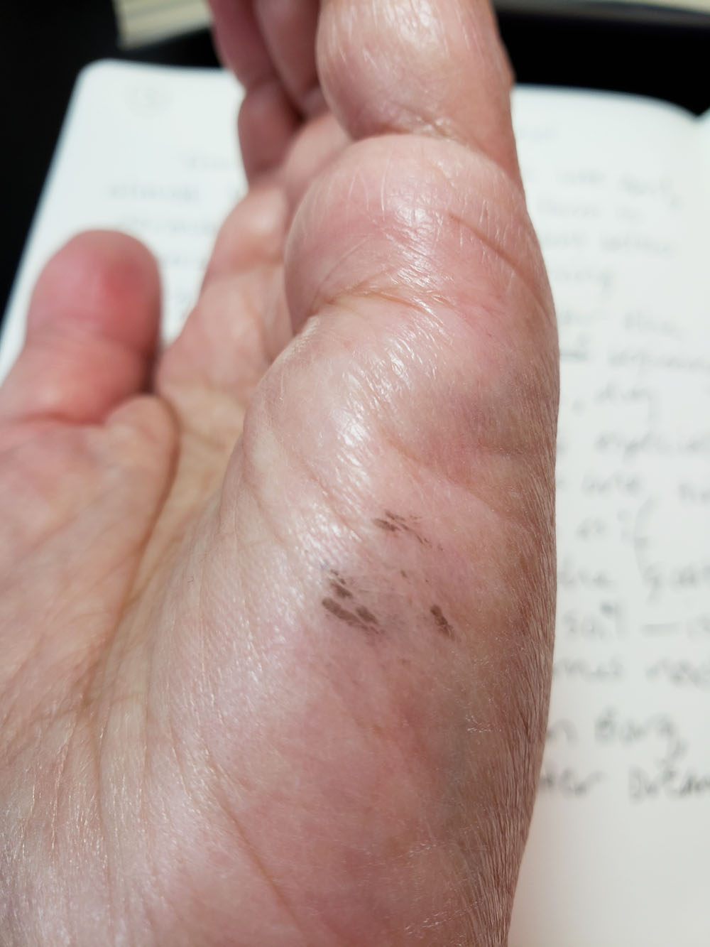 7 - Ohto Rays hand