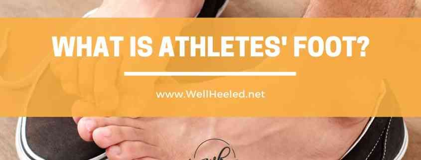 what is athletes foot by well heeled