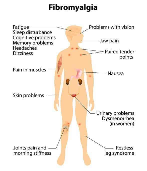 Fibromyalgia. Signs And Symptoms.