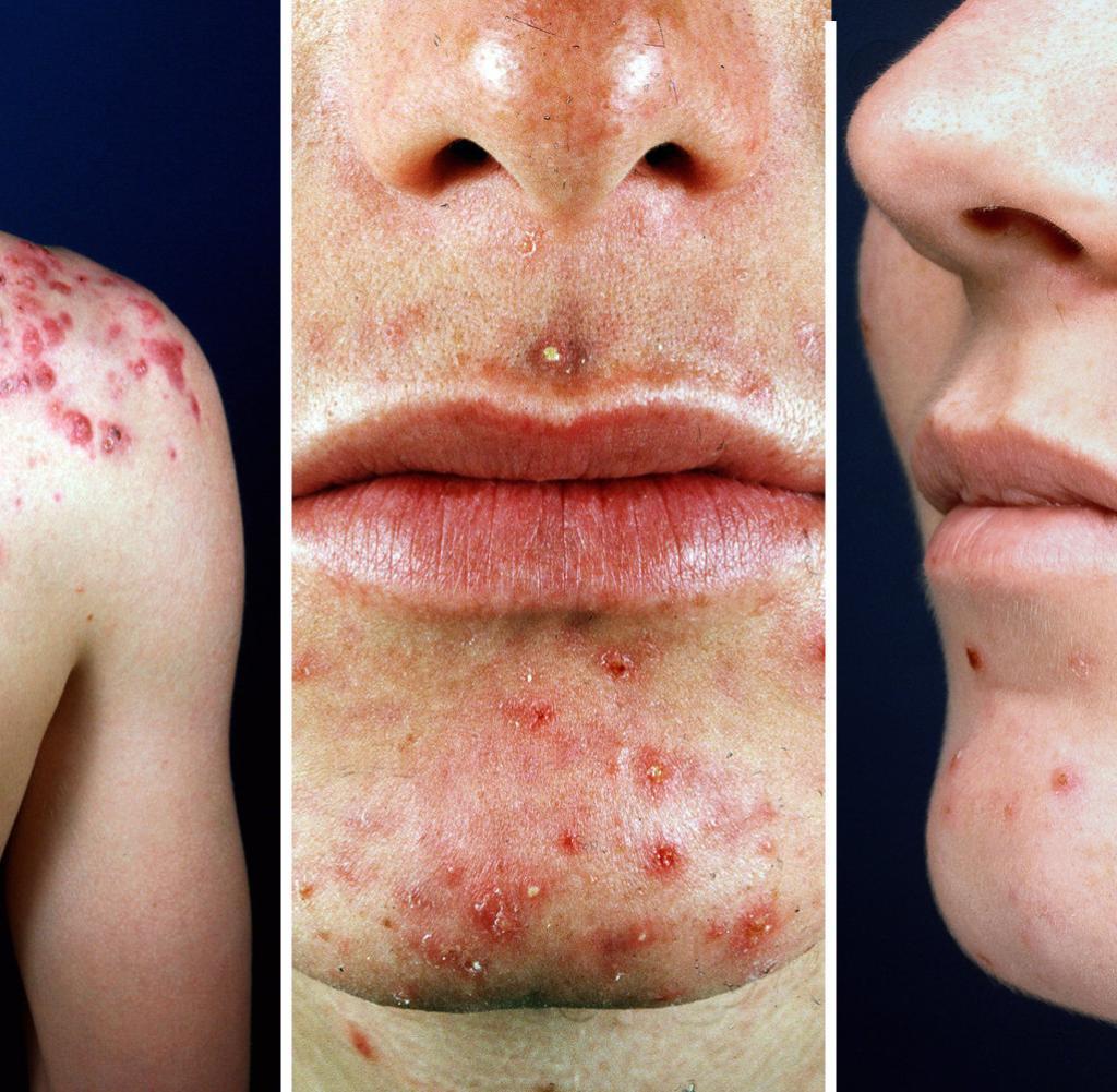 dermatologie wenn die akne im winter