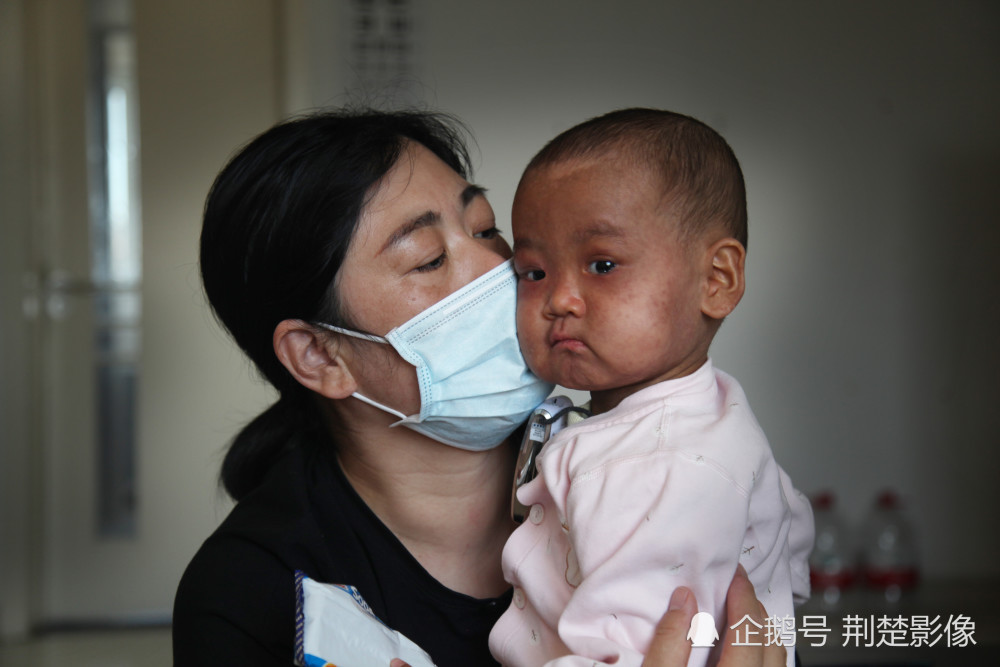 """女婴被两医院判""""死刑"""",倔强夫妻倾家荡产创奇迹(组图)"""