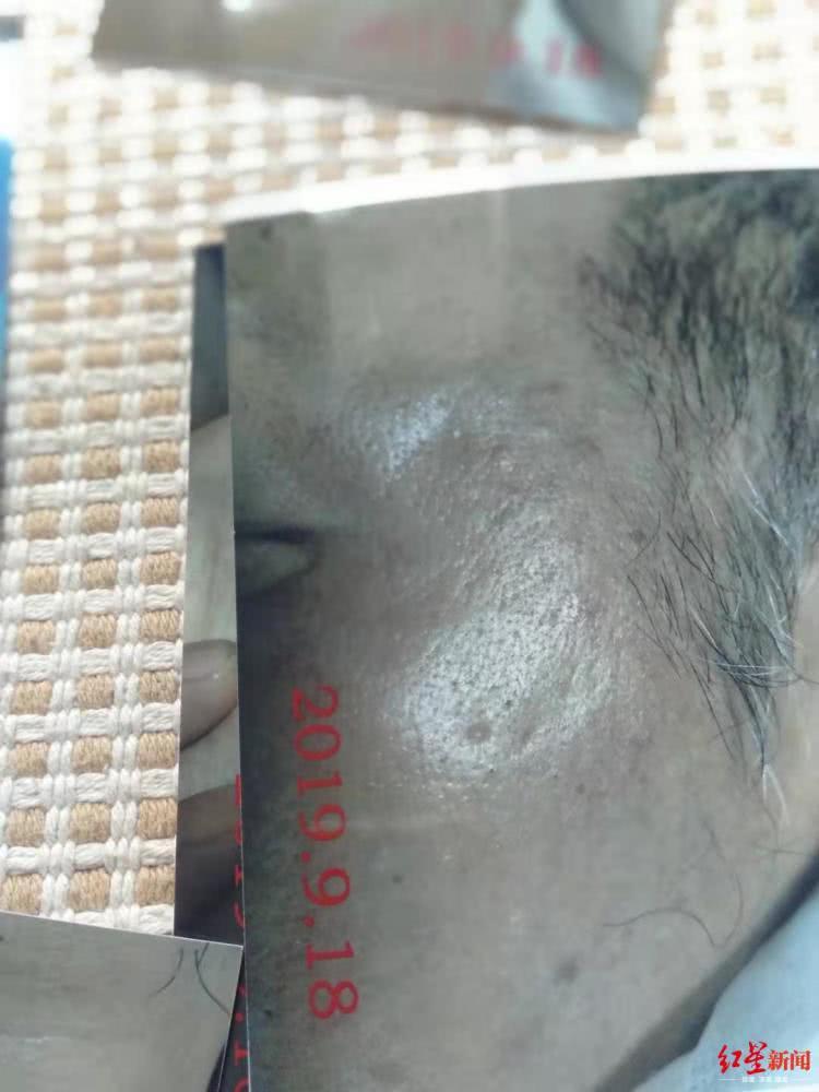 六旬老人被错认成嫖客遭警方殴打 赔9万要求息事(图)