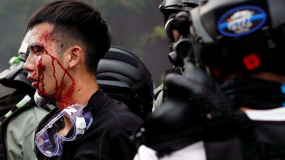 有示威者试图逃离理工大学遭警方阻止,头破血流