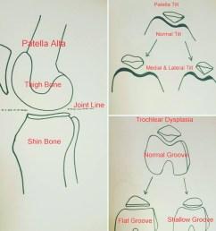 patella diagram [ 900 x 900 Pixel ]