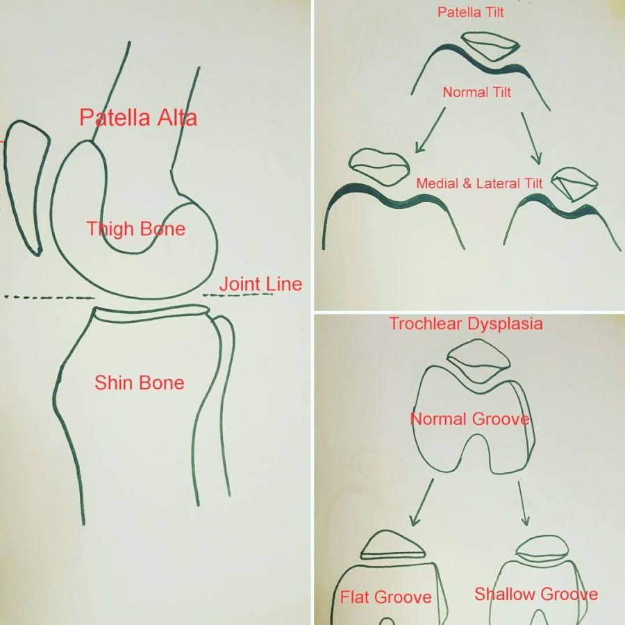 hight resolution of patella diagram
