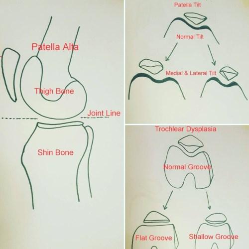 small resolution of patella diagram