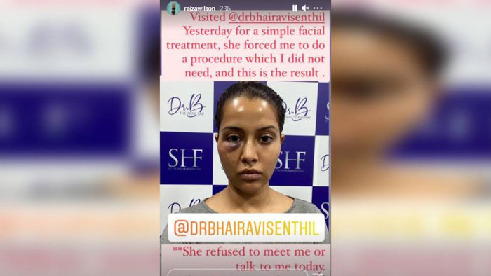 Skin Specialist এর জোরাজুরিতে চিকিৎসা করিয়ে বিপাকে অভিনেত্রী - West Bengal News 24