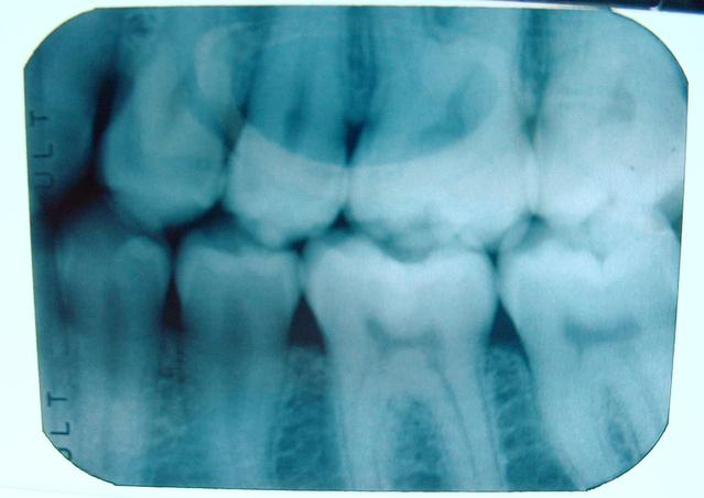 teeth-x-ray-1452823-639x452