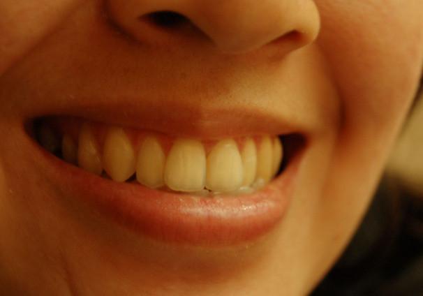 teeth-1435698-639x423