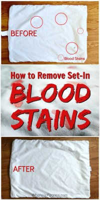 How to Remove Dried Set In Blood Stains from Clothes