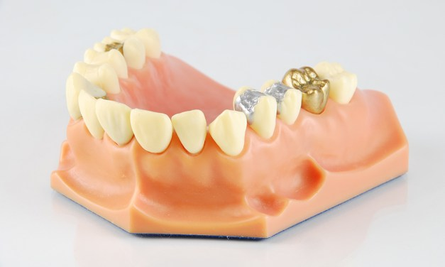 A Look into Dental Crown Cost and Other Methods of Cosmetic Dentistry
