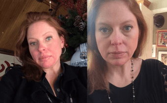 Caroline's fabulous skin changes with the Wheat Belly Detox