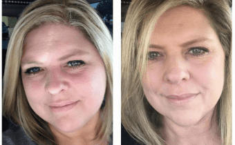 Another wonderful Wheat Belly facial transformation