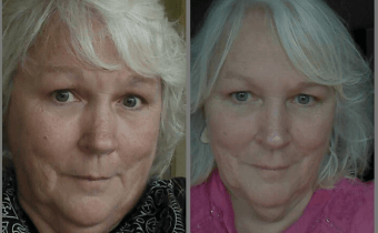 Another anti-aging success on the Wheat Belly lifestyle