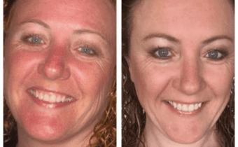 Wheat Belly Redux: Dramatic facial skin changes