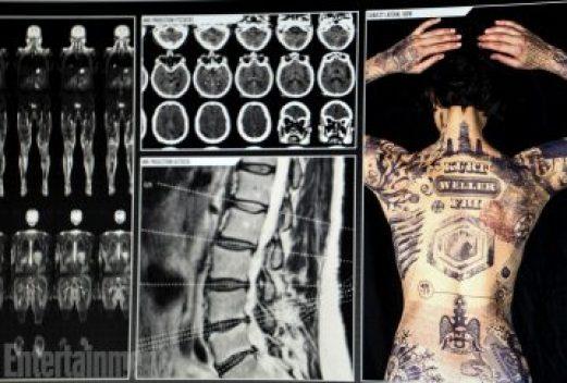 jane tattoos x-rays