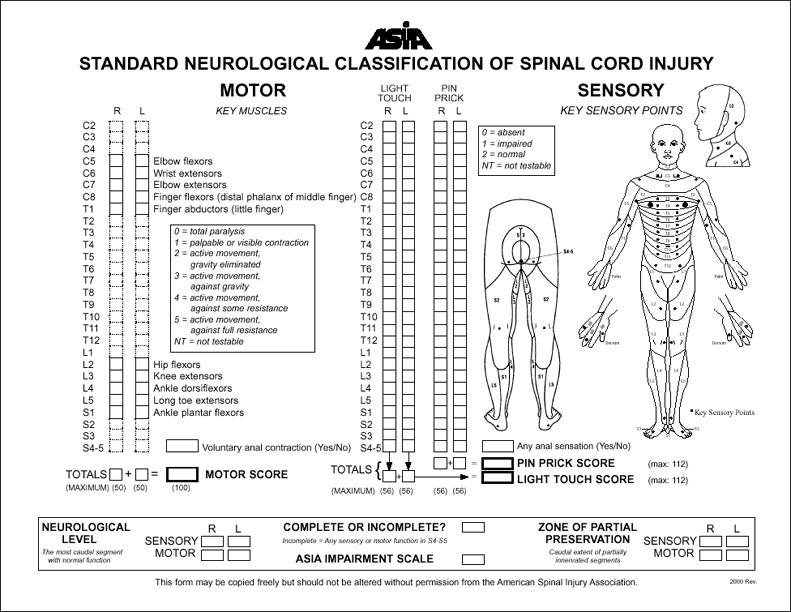 American Spinal Injury AssociationASIA Scale how to grade a