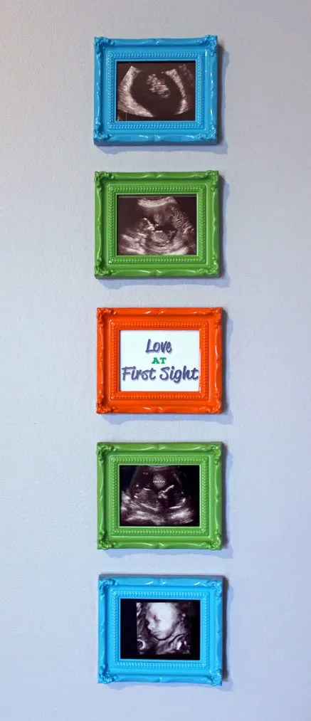 How to Display Sonogram Pictures in a Nursery