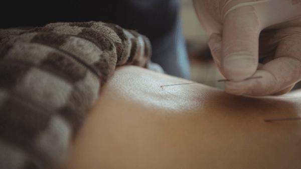 Acupuncture Courses