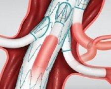 Cook Medical | Zenith t-Branch Thoraco Abdominal Stent Graft