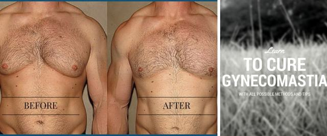 Gynecomastia and how to get rid of it