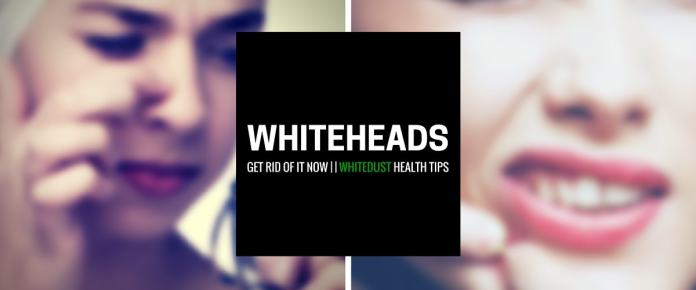 how to get rid of whiteheads on nose naturally