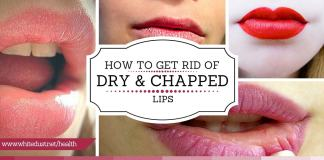 how to get rid of chapped lips fast