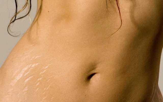 getting rid of strech marks