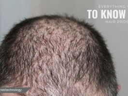 EVERYTHING YOU NEED TO KNOW ABOUT HAIR PROSTHESIS