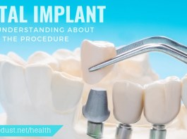 dental implant our understanding about the procedure