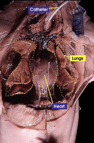 abdominal aorta diagram wiring 3 way light switch lungs   whitman college